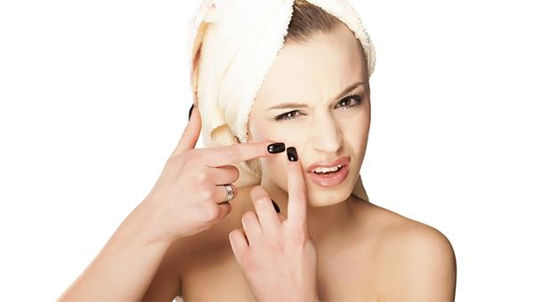 Mitos e verdades sobre a acne