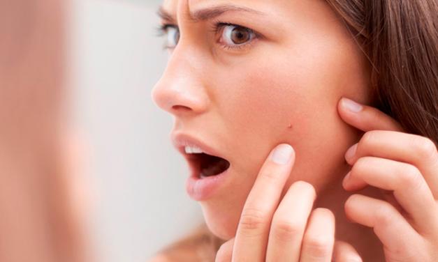 Qual a relação da pele do rosto oleosa com cravos e espinhas?